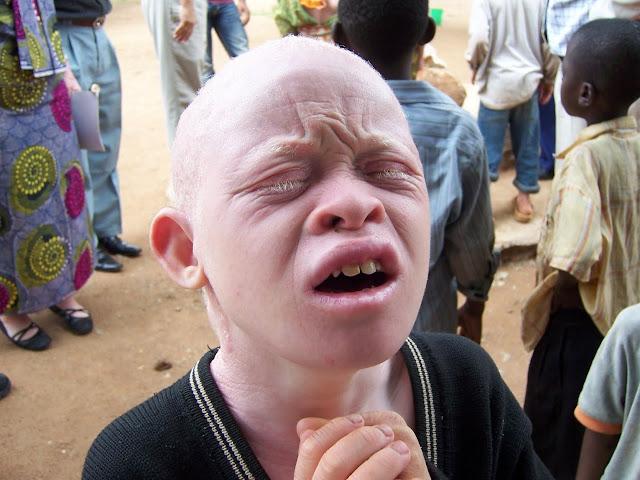 african+albino.JPG