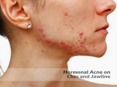 hormonal acne on chin and jawline