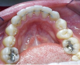 Wheaton Orthodontist: So, you just finished braces, NOW ...