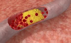 Cholesterol, LDL Cholesterol, HDL Cholesterol Triglycerides