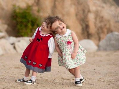 Lima Manusia Kembar Siam Paling Fenomenal di Dunia
