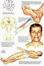 Cara Mengobati Penyakit Tetanus Secara Alami