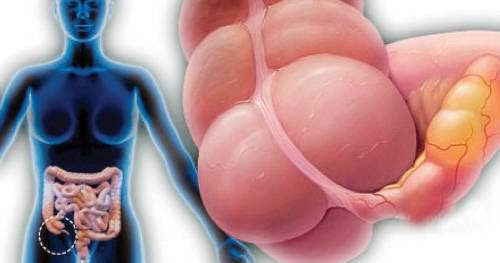 what are the signs symptoms and treatment of appendicitis, Human Body