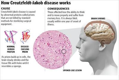 Creutzfeldt-Jakob Disease, CJD