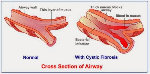 Treatment Options For Cystic Fibrosis