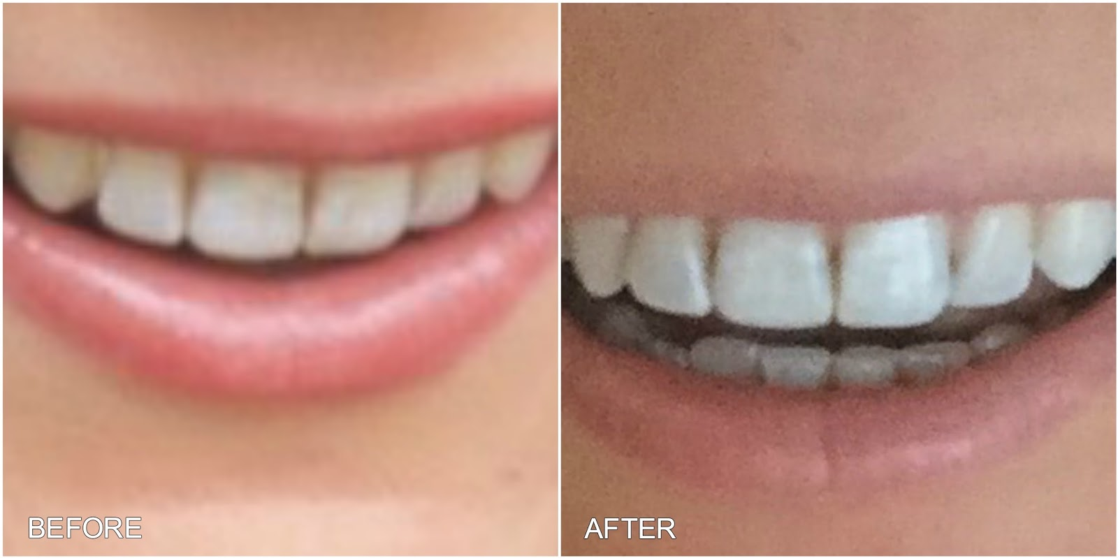 The best teeth whitening kits you can buy - Business Insider Crest 3d white strips before and after pictures