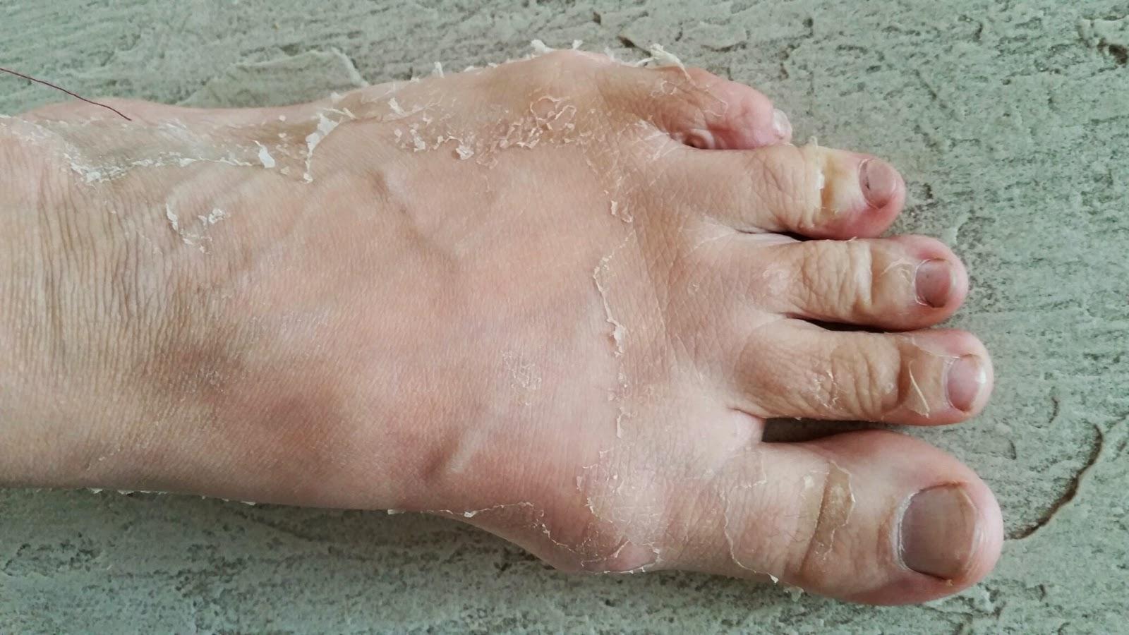skin peeling on top of feet