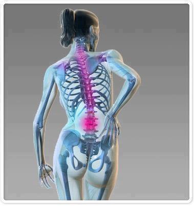 Como es curada la osteocondrosis del departamento lumbar de 3 grados
