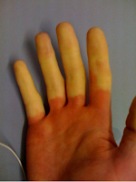 Saiba o que é a doença do dedo branco causada pela vibração