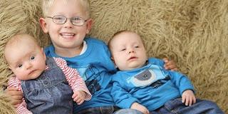 3 Bayi Kembar Dengan Beda Usia 3 Tahun