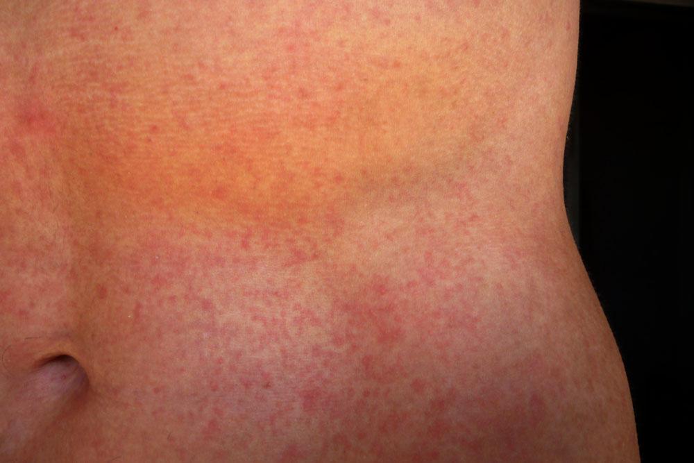 symptomer på denguefeber
