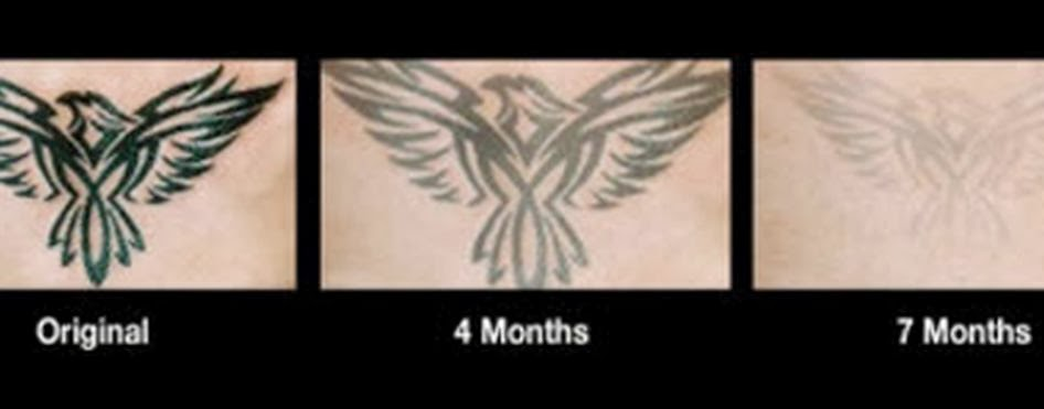 tattoo removal cream, before and after photos of tattoo removal cream, tattoo removal cream before and after pictures