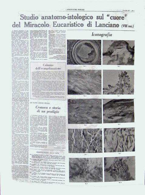 """Trabalho do Dr. Linoli  publicado pelo diário vaticano """"L'Osservatore Romano"""""""