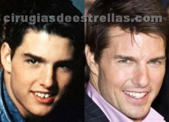 El antes y después de los dientes de Tom Cruise