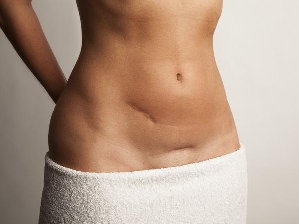 8 Remedios naturales para hacer desaparecer las cicatrices
