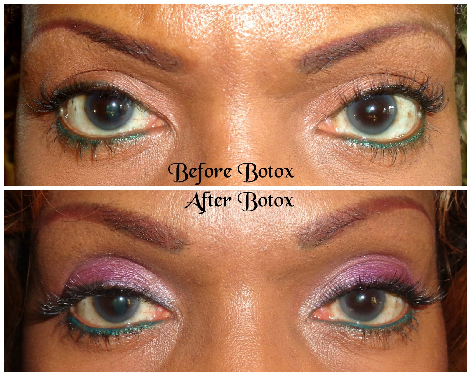 how to fix uneven eyelids with tape