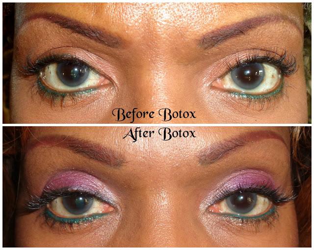 Upper Eyelid Surgery (Blepharoplasty)