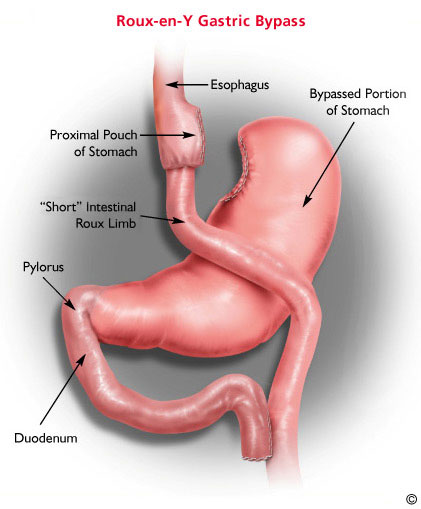 A Place Where Our World Makes Sense  Gastric Bypass