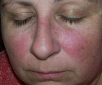 Pregnant Rash On Face