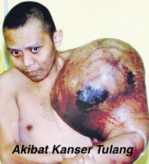 Akibat Kanser Tulang