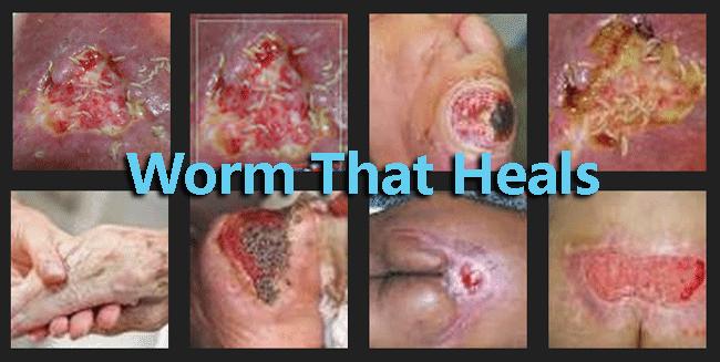 Worm That Heals