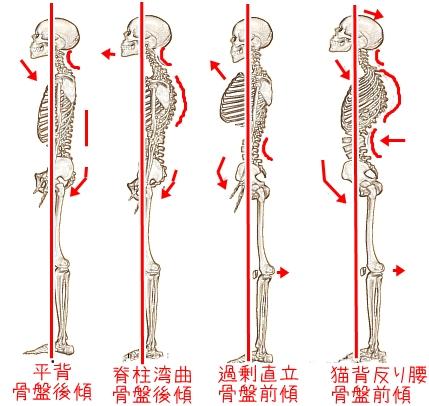 「骨盤 傾き」の画像検索結果