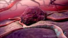 Obat Tumor Tradisional
