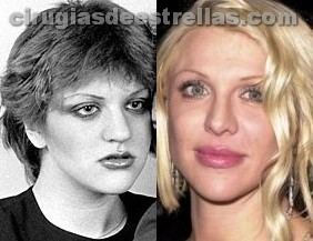Implante de labios de Courtney Love