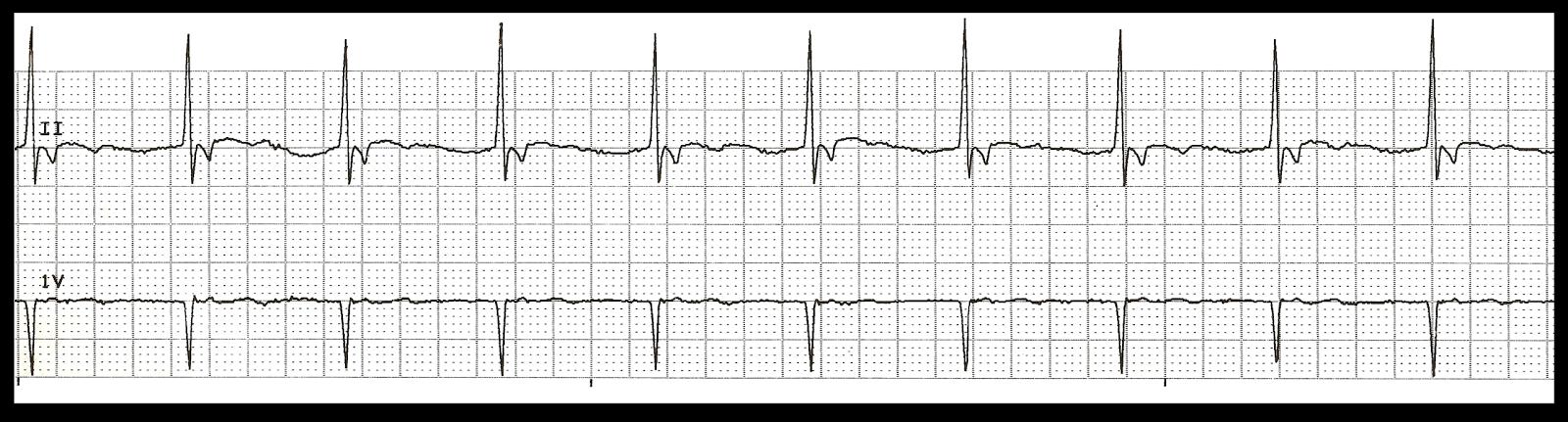 Float Nurse: Practice EKG Strips 381