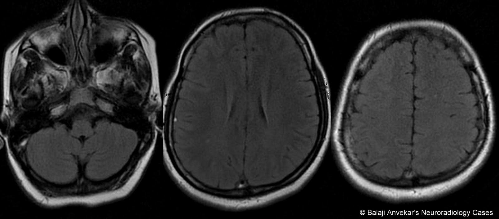 Dr Balaji Anvekar U0026 39 S Neuroradiology Cases  Dural Sinus