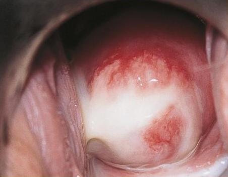 schimmelinfectie baarmoeder