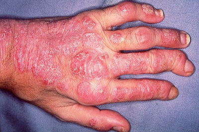 Tratamiento Casero para la Artritis Psoriasica