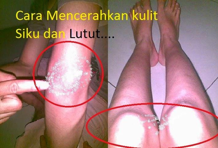 Dr Oz Tips Cerahkan Kulit Siku dan Lutut
