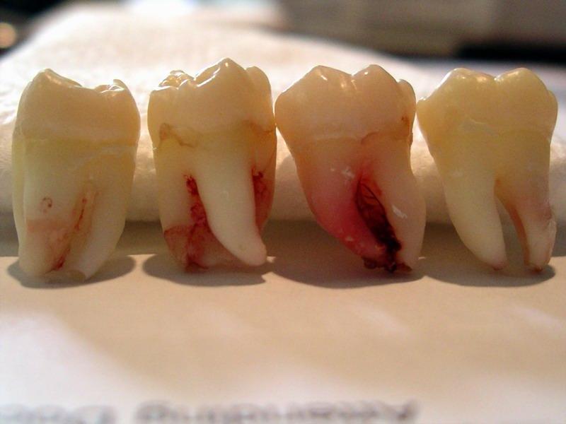 Остатки инструментов в зубе