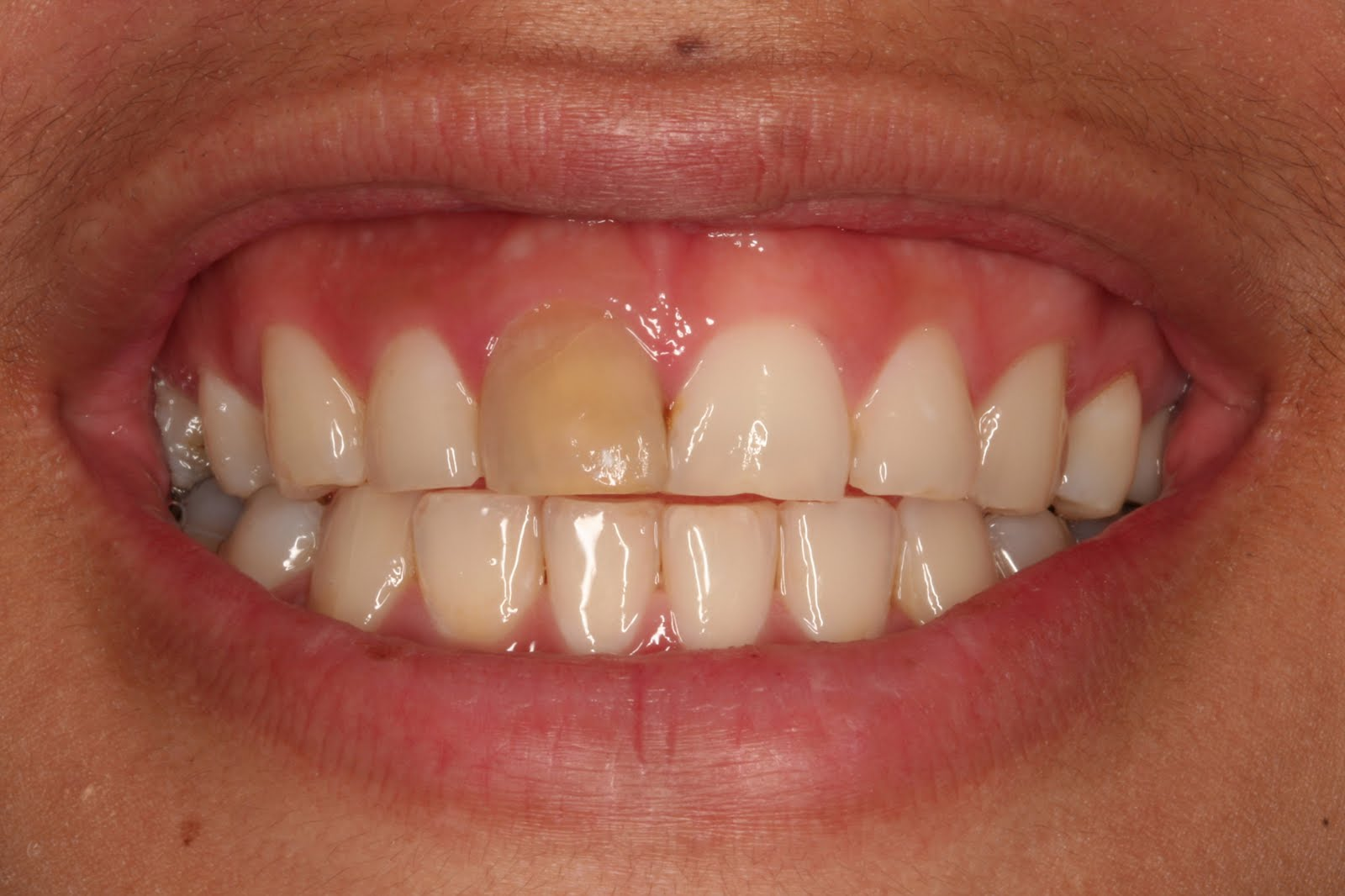 Discolored Front Tooth