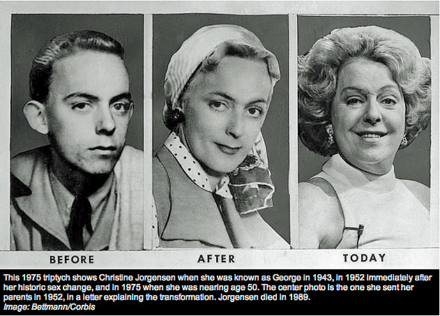 Jorgensen was one of the first people to become famous for undergoing gender transformation surgery. Joregensen served as a clerk in the army before undergoing the surgery in the 50s