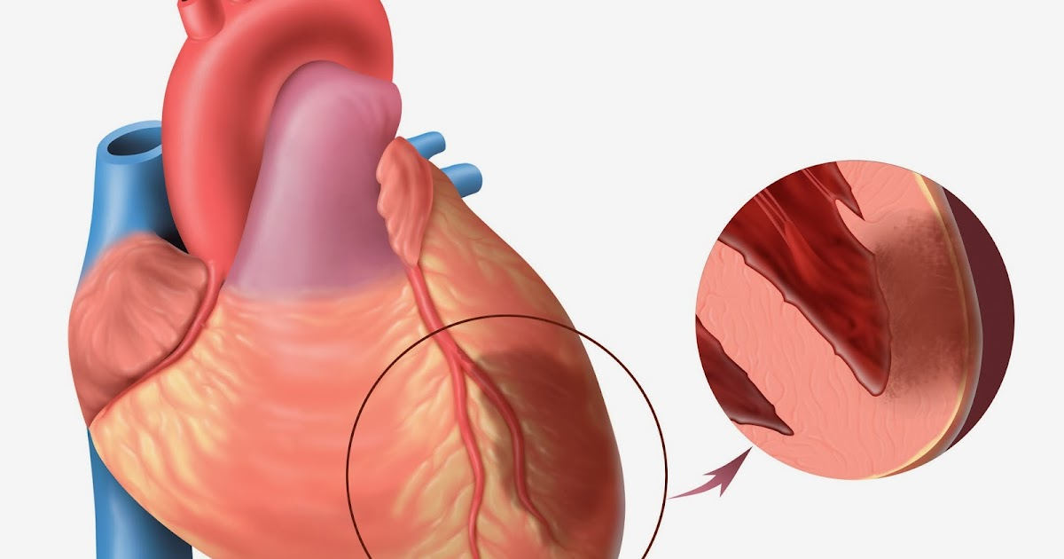 an analysis of myocardial infarction also known as heart attack Emerging risk factors for coronary heart disease: a summary of  or  myocardial infarction, also known as major or hard coronary heart.