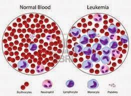 Fakta Tentang Penyakit Leukimia
