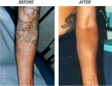 Laser tattoo removal for How to prevent tattoo fading