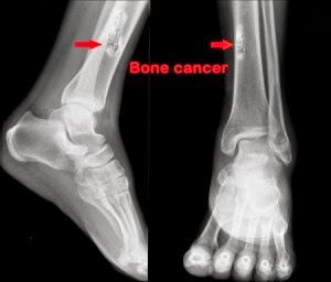 http://www.orthopedic-oncologist.com/bonecancer.php
