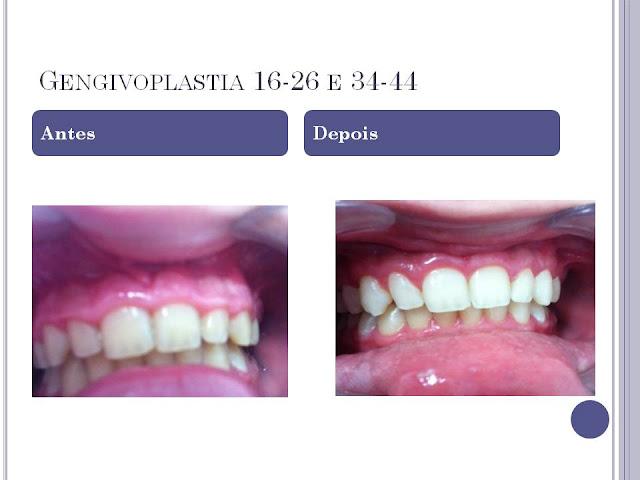 Slide2 - Gengivoplastia - Caso Clínico