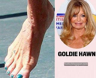 +Ugly feet celebrities+(3) Ugly Feet Of The Celebrities