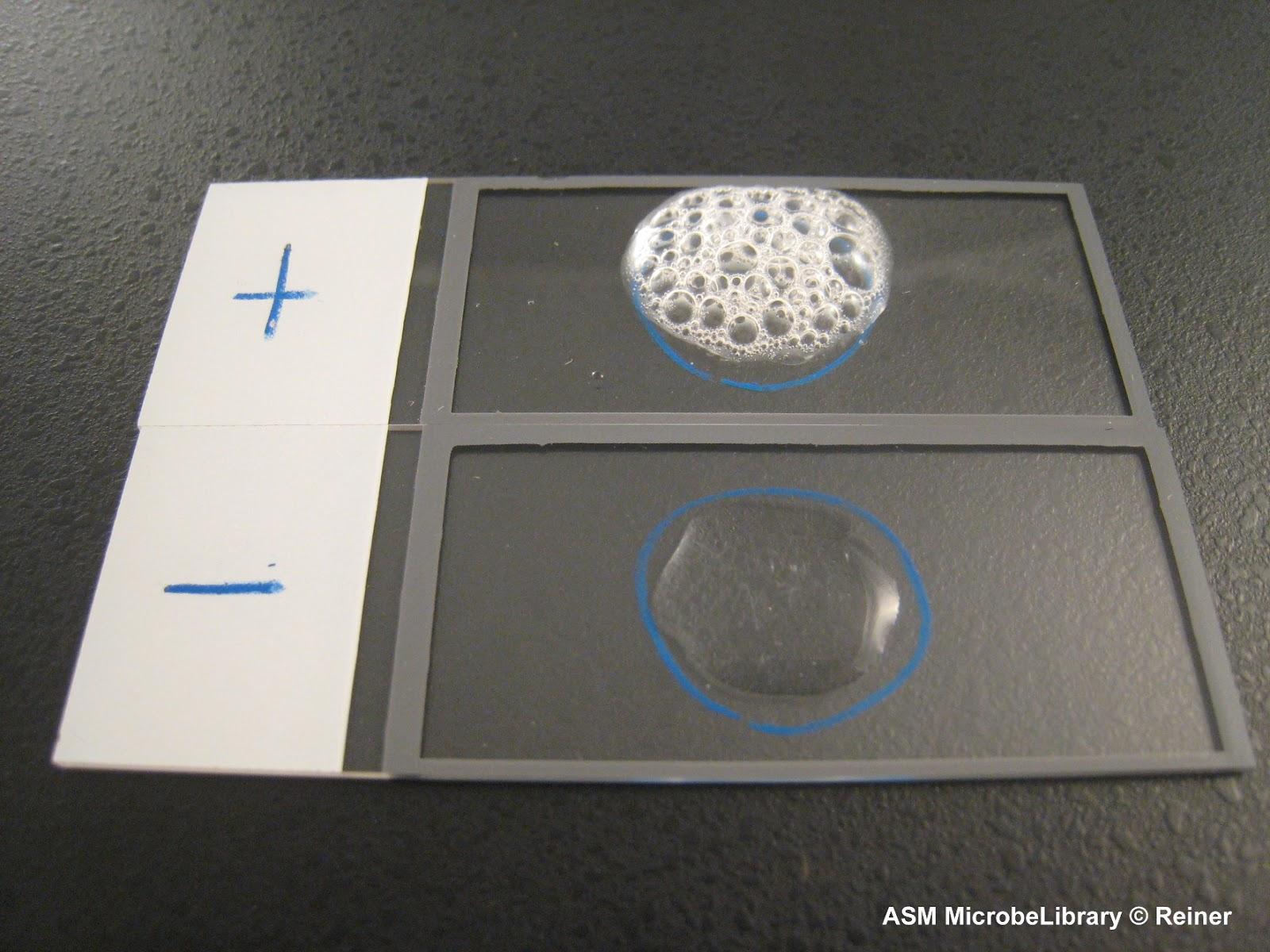 Staphylococcus aureus catalase test
