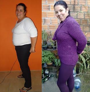 suziane burguez proença emagrecimento dieta obesidade redução estômago gastroplastia