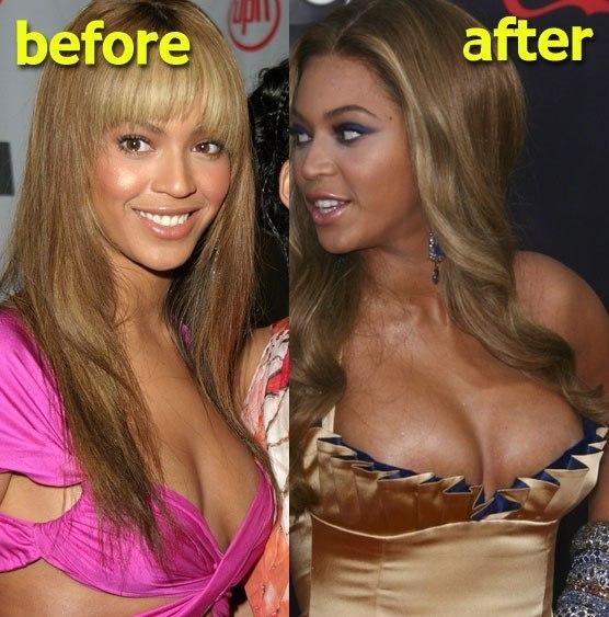 как сделать грудь чуть больше: