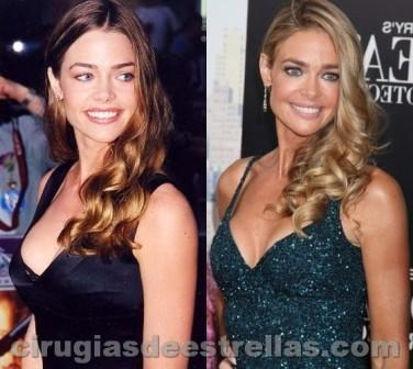 Denise Richards cirugías