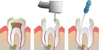 eliminar el dolor de dientes con apertura dental