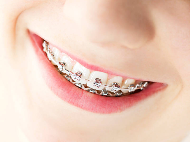 orthodontic treatment for irregular teeth wearing braces treatment done at jamnagar