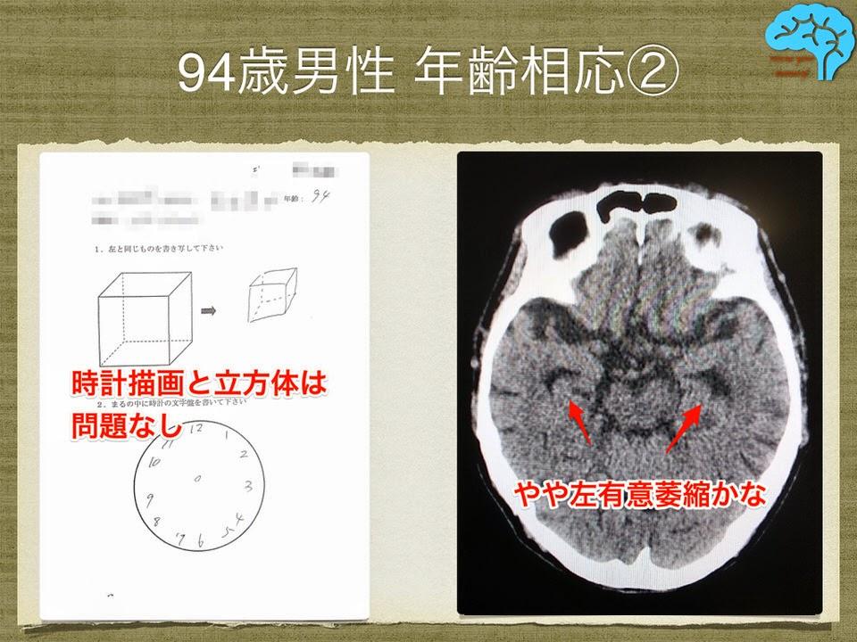 94歳男性の頭部CTと時計描画、透視立方体模写