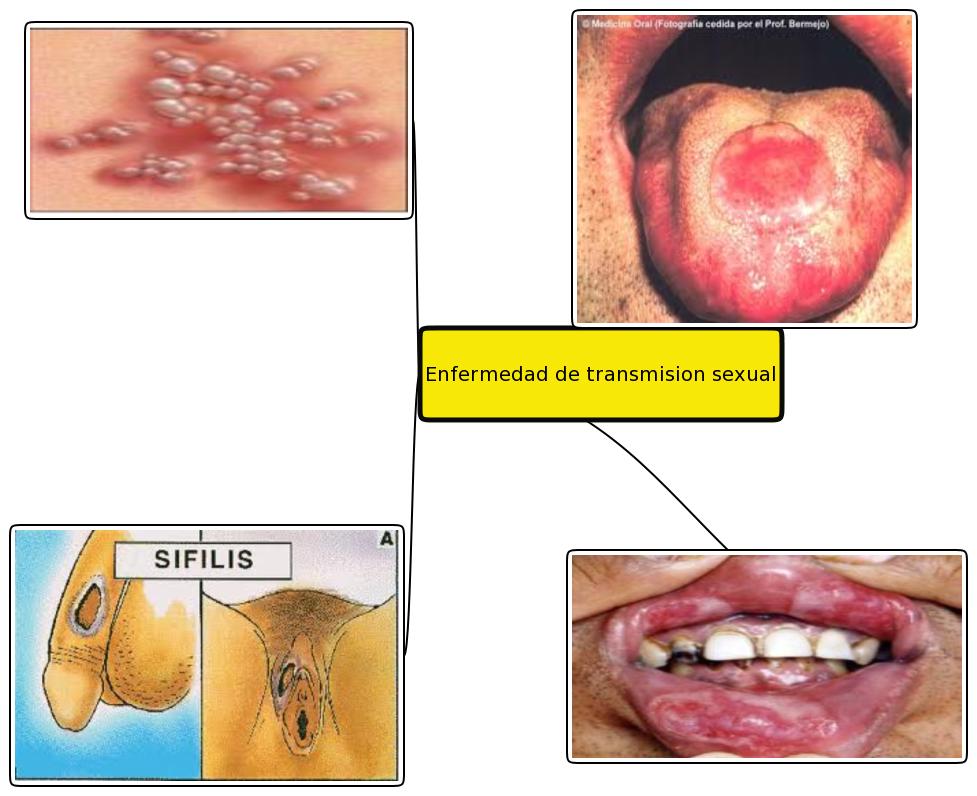 Liliana Lesme: Enfermedades venereas de transmisión sexual: lilianalesme609.blogspot.com.ar/2011/10/enfermedades-venereas-de...